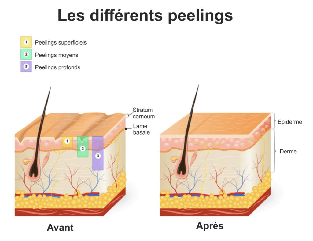 peeling-couches-cutanées