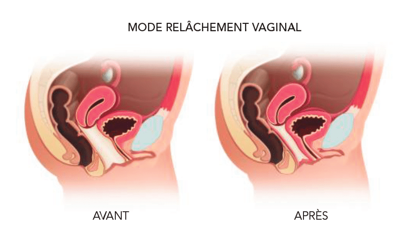 relachement-vaginal