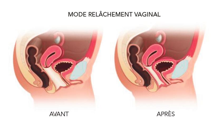 relachement-vaginal